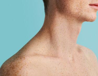 Haut mit Sommersprossen